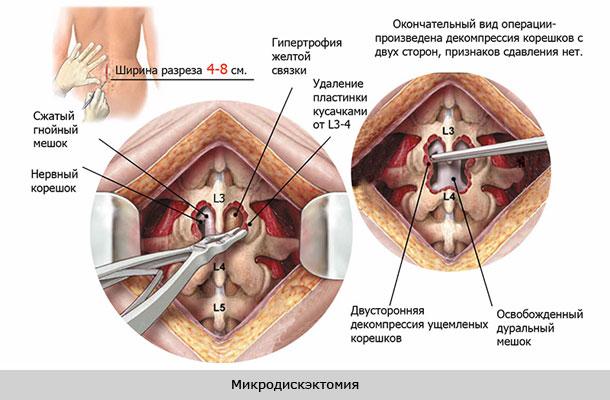 gerincvelő gerinc artrózisának kezelésére szolgáló módszerek