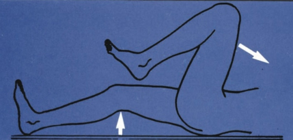 csípőízület veleszületett diszlokációja felnőtteknél