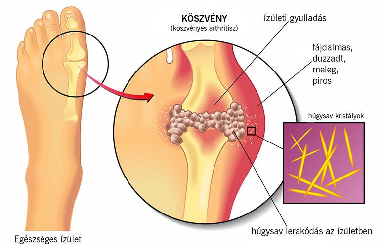fájdalom a láb és az ujjak ízületeiben)