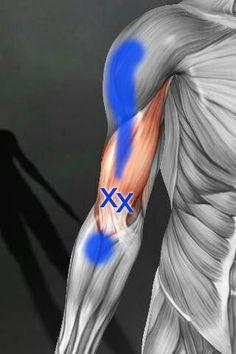 artrosz kezelése diprospannal)
