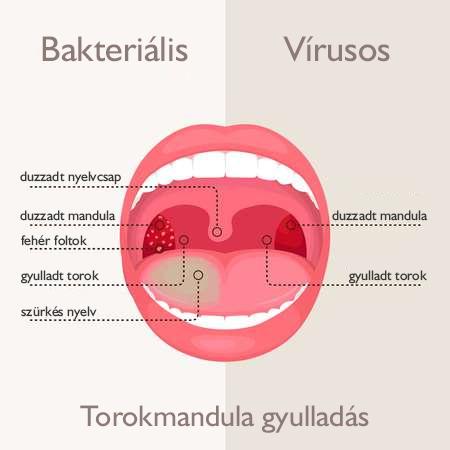 Mnadulagyulladás és ízületi gyulladás