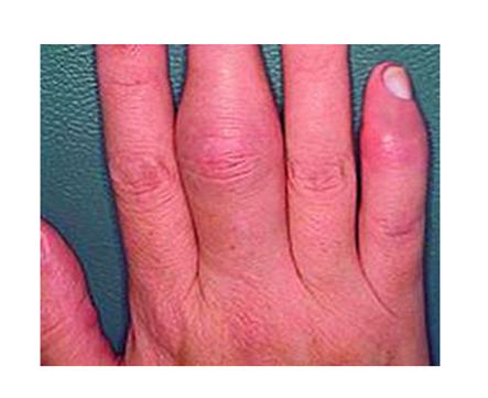az ujjak kis ízületeinek ízületi gyulladása)