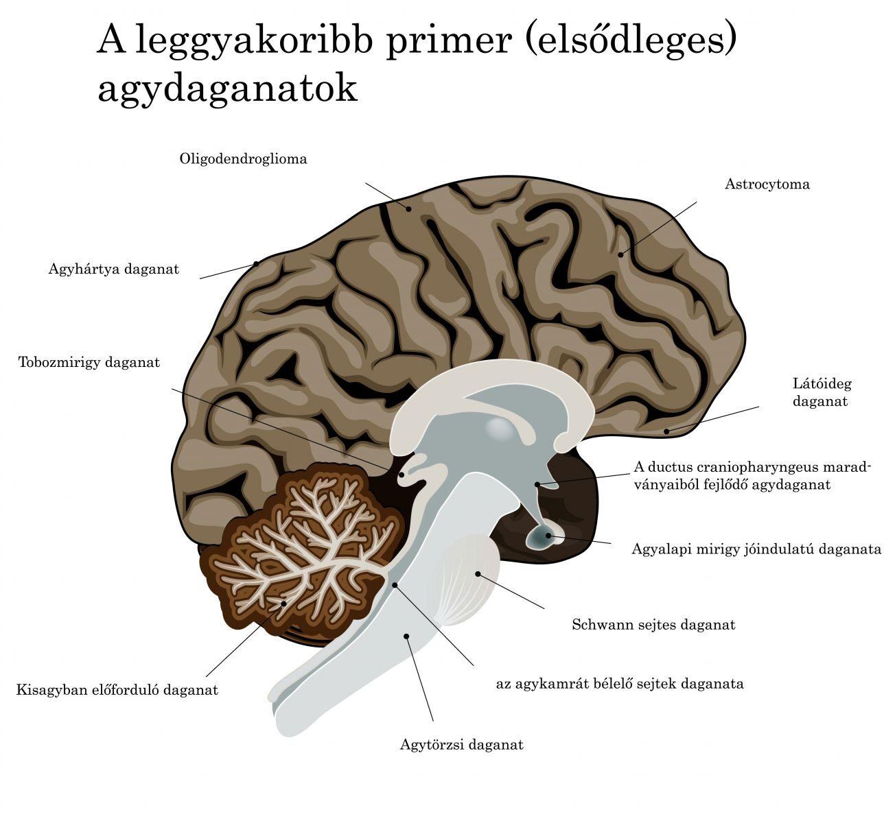 az agy duzzanata a vállízületben