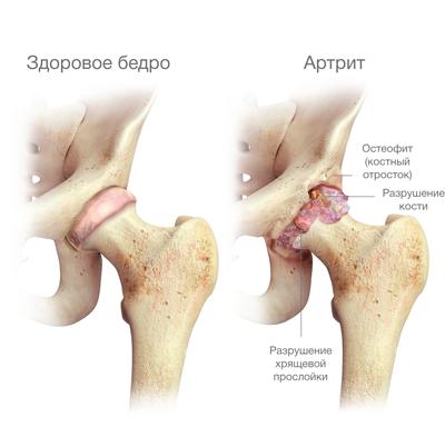 4. szakasz a csípő artrózisa)