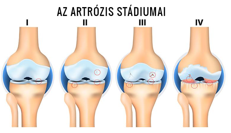 artrózis 1. stádiumú kezelés)