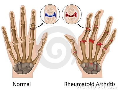 rheumatoid arthritis zsibbadt kar)