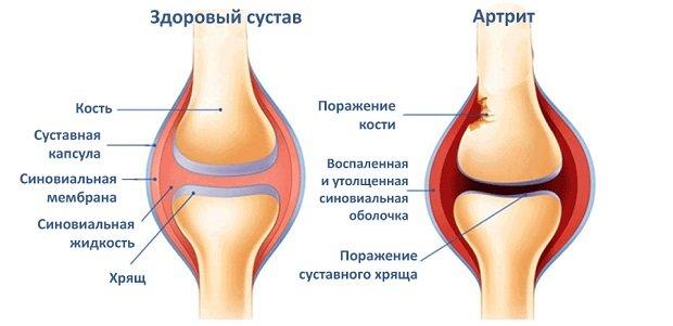 ízületi fájdalom 30 év után hűtőgélek ízületi fájdalmak kezelésére