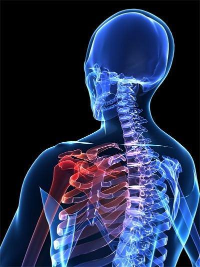 a vállízület ii. fokú artrózisának kezelése