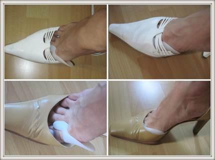 a láb 2. fokú artrózisának kezelése