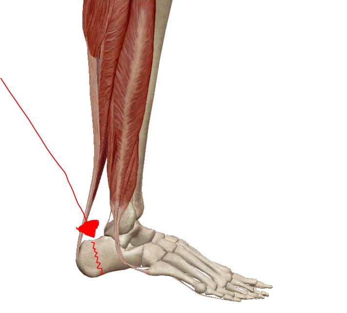 ízületi fájdalom a láb alján)