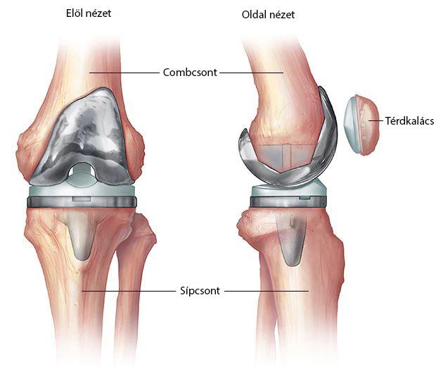 Megbízható, hatékony komplexek gyakorlatok osteoarthritis térdízület