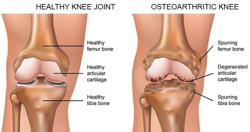 térdízületi fájdalom okozza a kezelést