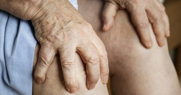 az interfalangális ízületek 2. fokú ízületi gyulladása