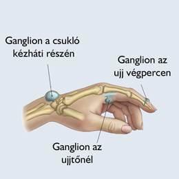 a csuklóartrózis kezelése)