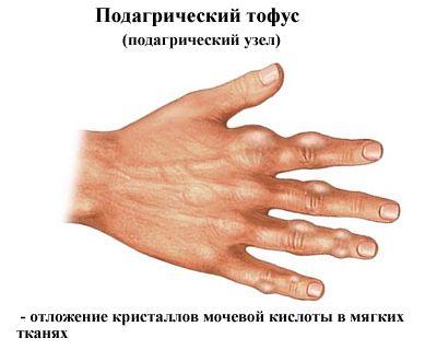 tinktúrák a kézízületek fájdalmához)