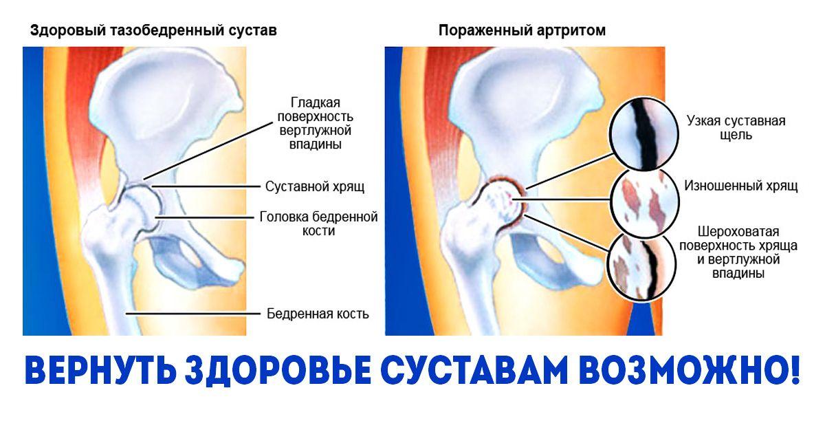 hogyan lehet kezelni az ízület bursitisét)