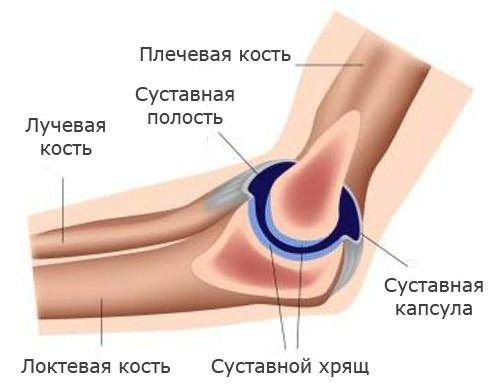 enyhíti az ízületi gyulladáscsökkentő gyógyszert arthrosis 3 fokú kezelés
