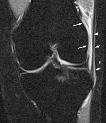 iliotibial band syndrome radiology