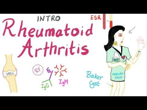 arthrosis osteoarthrosis kezelés