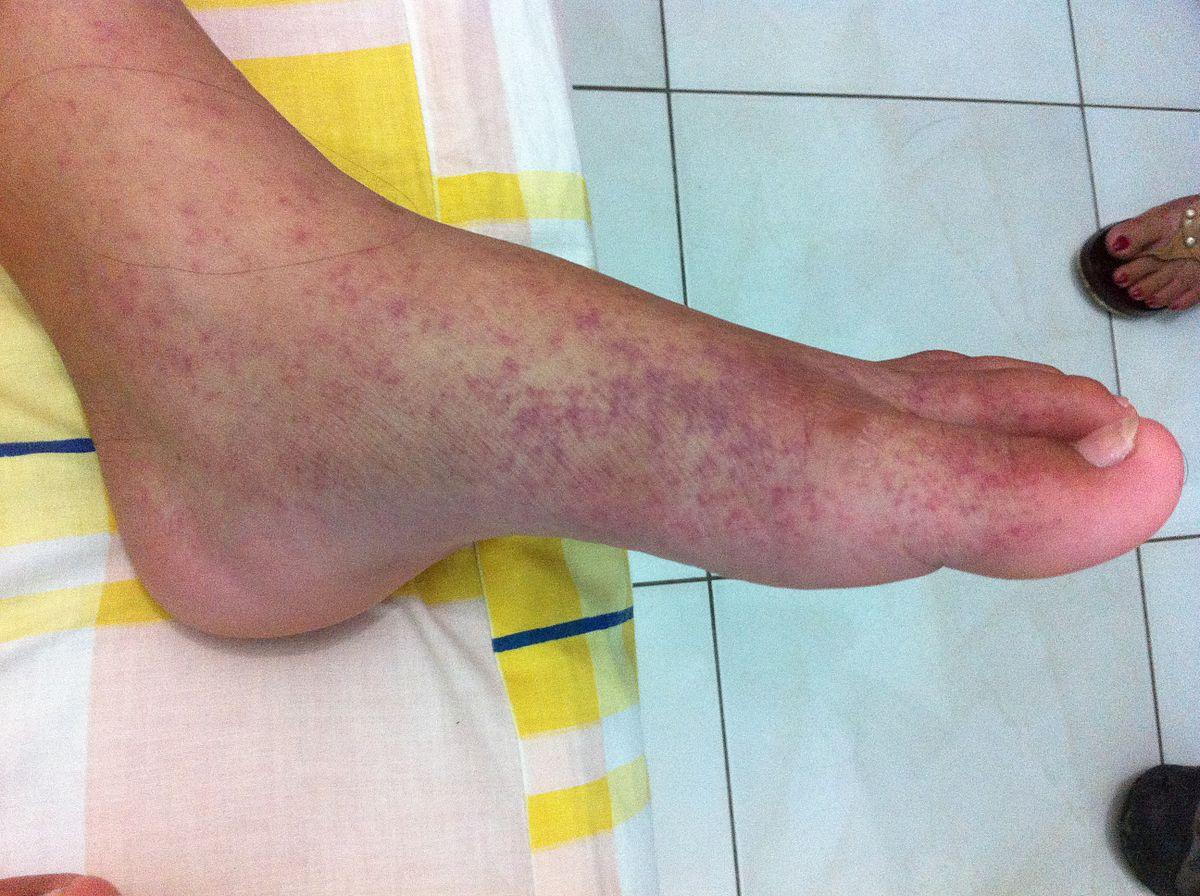 ízületi duzzanat a láb kezelésénél