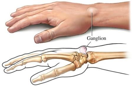 fájdalom és ropogás a csukló ízületeiben