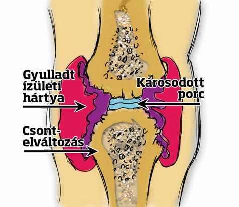 térd deformáló ízületi gyulladása