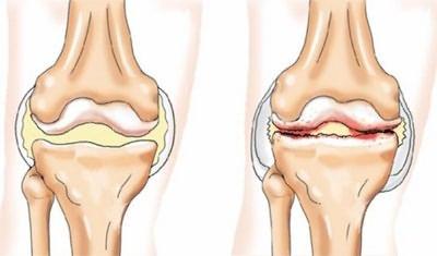 a fájdalom oka a csípőízületben, mint hogy kezelje)