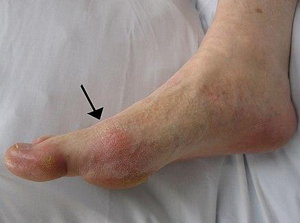 hogyan lehet gyógyítani a láb ízületének gyulladását)