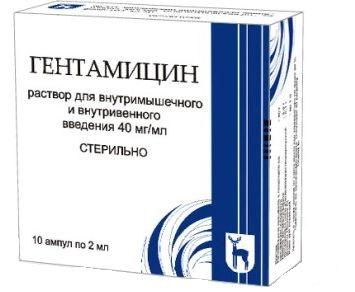 csípőízület artrózisának diagnosztizálása