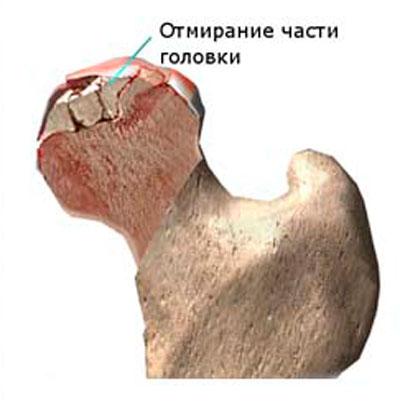 a csípőízület disztrófikus artrózisa)