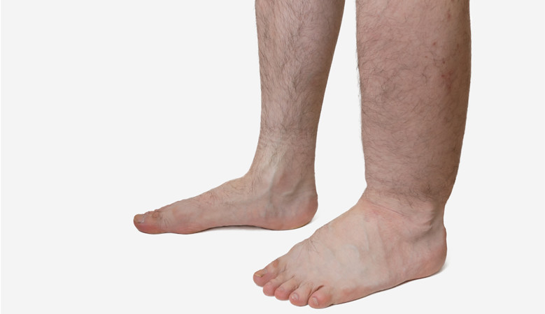 ízületi duzzanat a láb kezelésénél)