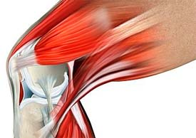 a térdízület patellofemoralis artrózisa