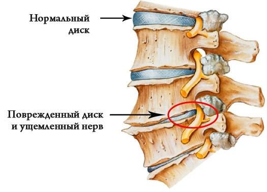 a fájdalom az ágyékban a csípőízületről sugárzik