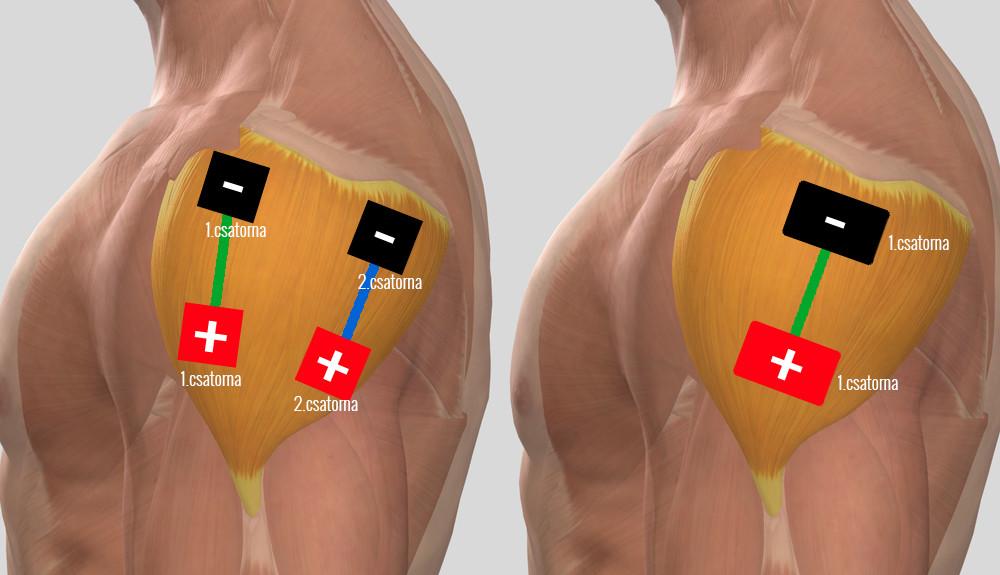 a vállízület gyulladása a periarthritis kezelésére