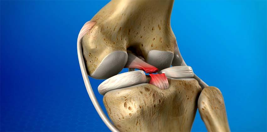 a térd ízületeinek sérülésének jelei a boka ízületi gyulladása törés után