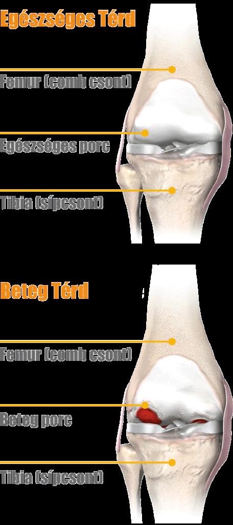 1. és 2. térd artrózisa