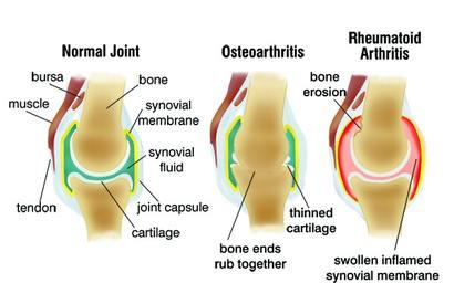 az ízületi ízület artrózisa)