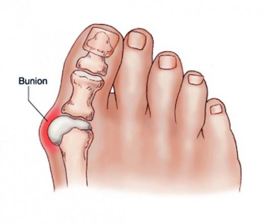 ízületi gyulladás a nagy lábujjak hogyan kell inni glükózamint és kondroitint