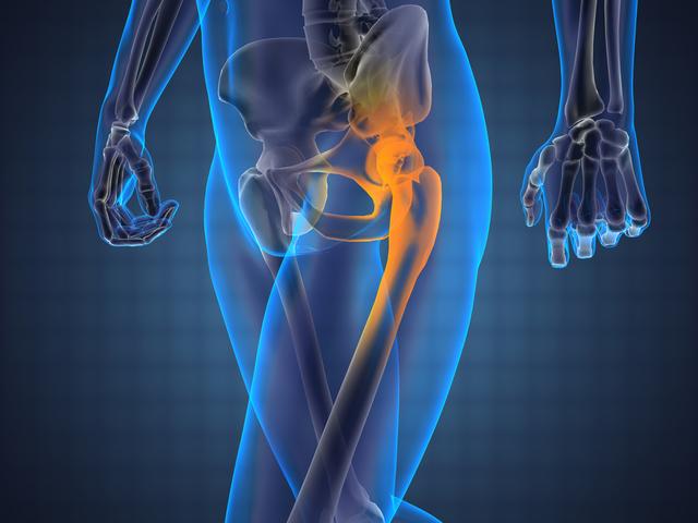 fájdalom a csípőízületben a skoliozis miatt)
