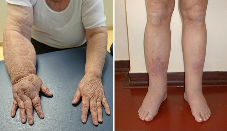 ödéma kezelése boka artrózissal)