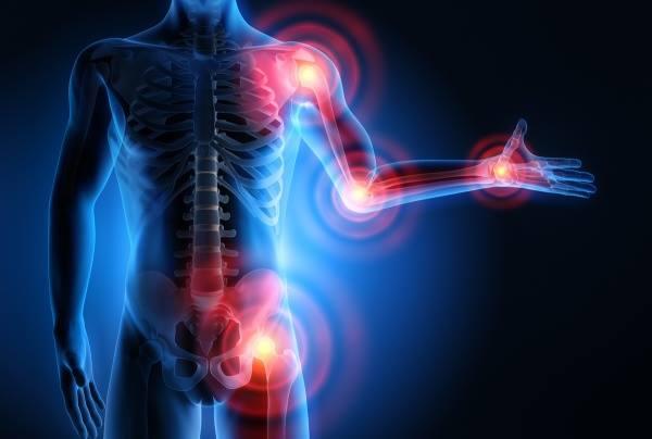 ízületek fájdalmat okoznak a mazsola a kéz ízületeit érintő betegségek