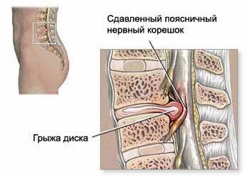 osteochondrosis neck treatment testápolók
