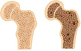 hogyan kezeljük a csontritkulást