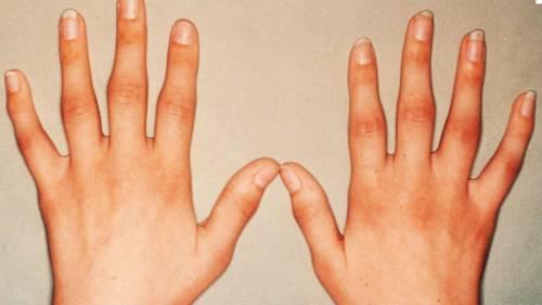 Artrózis a láb második fokának