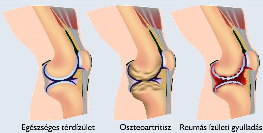 hársvirág ízületi kezelésre a középső láb ízületei ízületi gyulladása