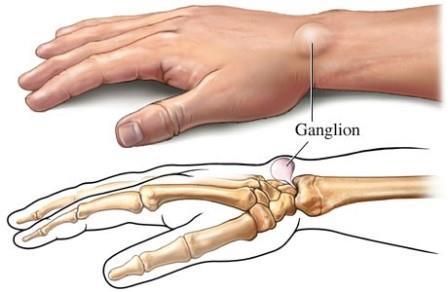 fájdalom és ropogás a kéz kis ízületeiben