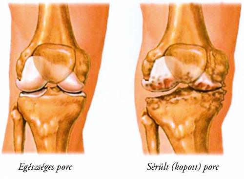 artrózis körömvirág-kezelés