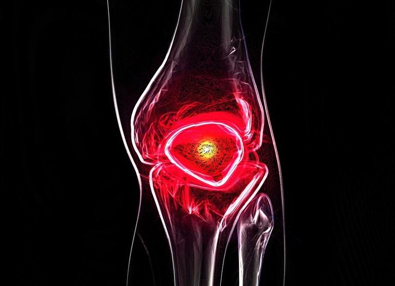 csoportos vitaminok ízületi fájdalmak miatt)