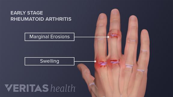 rheuma arthritis finger)