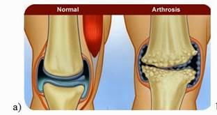 A csípőízület osteoarthritis: kezelés, tünetek, fok